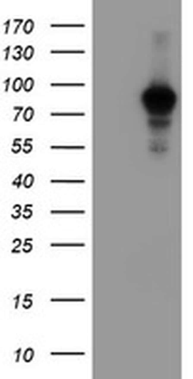 ATRIP Antibody in Western Blot (WB)