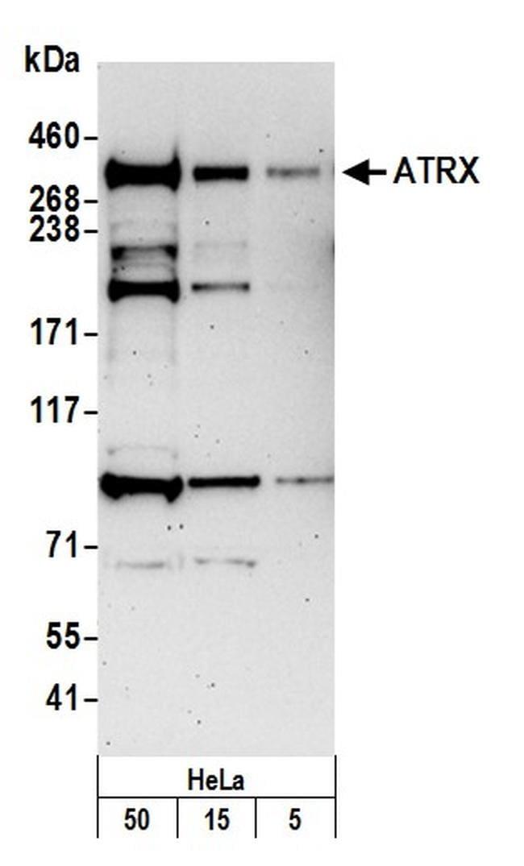 ATRX Antibody in Western Blot (WB)