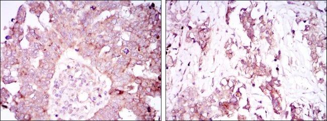 Ataxin 1 Antibody in Immunohistochemistry (IHC)