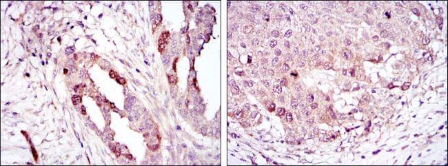 Aurora A Antibody in Immunohistochemistry (IHC)