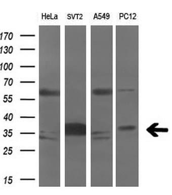 AURKC Antibody in Western Blot (WB)