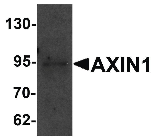 AXIN1 Antibody in Western Blot (WB)