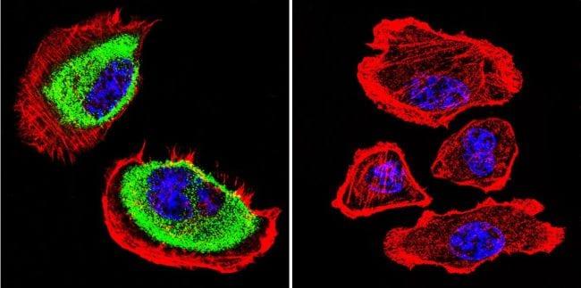 Acetylcholinesterase Antibody in Immunofluorescence (IF)
