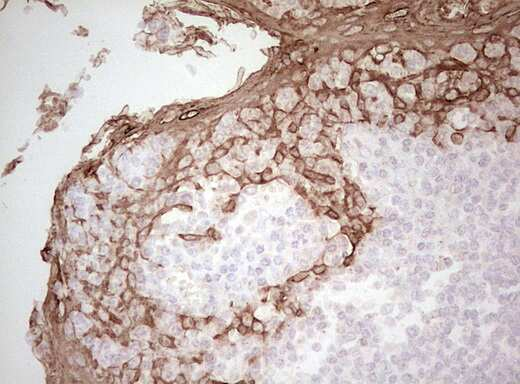 Acidic Cytokeratin Antibody in Immunohistochemistry (Paraffin) (IHC (P))