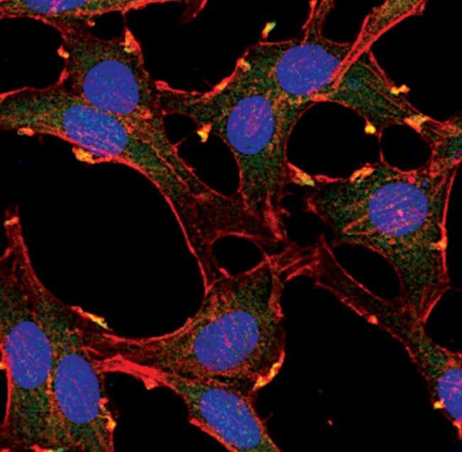 AKT Pan Antibody in Immunocytochemistry (ICC/IF)