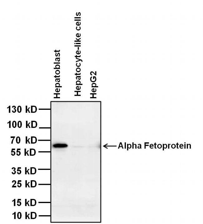 Afp Antibody Monoclonal P5b8