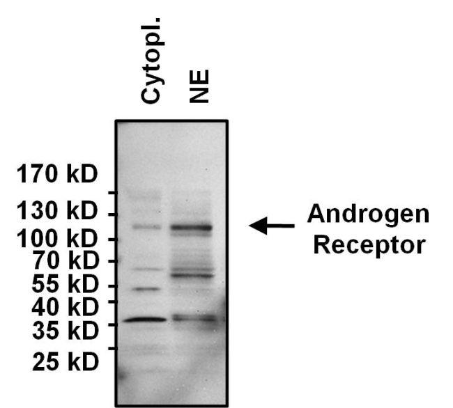 Androgen Receptor Antibody Monoclonal Ar 441