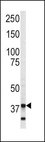 Annexin V Antibody in Western Blot (WB)