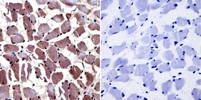AHR Antibody in Immunohistochemistry (IHC)