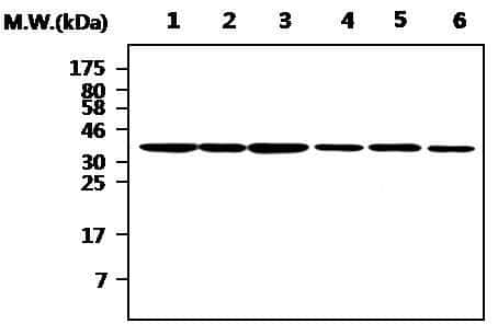 Aurora B Antibody in Western Blot (WB)