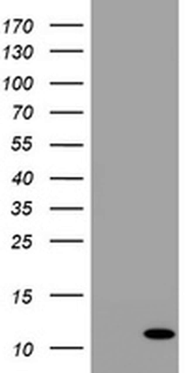B2M Antibody in Western Blot (WB)