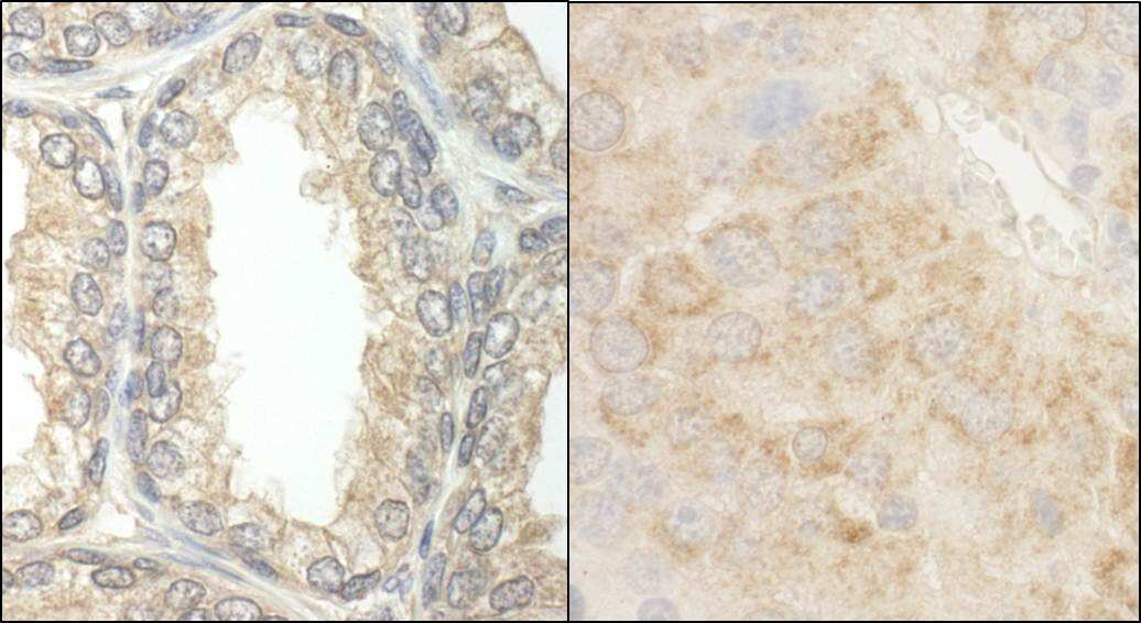 BAD Antibody in Immunohistochemistry (IHC)