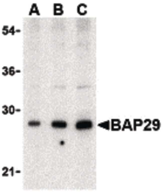 BAP29 Antibody in Western Blot (WB)