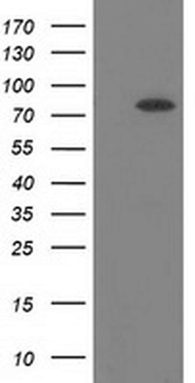 BCHE Antibody in Western Blot (WB)