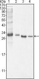 Bcl-10 Antibody in Western Blot (WB)