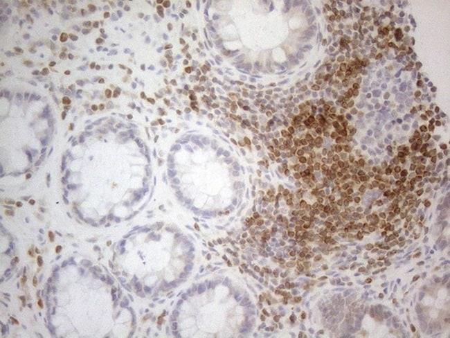 BCL2 Antibody in Immunohistochemistry (Paraffin) (IHC (P))