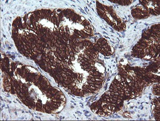 BCL2L1 Antibody in Immunohistochemistry (Paraffin) (IHC (P))