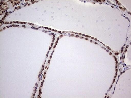 BCL6 Antibody in Immunohistochemistry (Paraffin) (IHC (P))