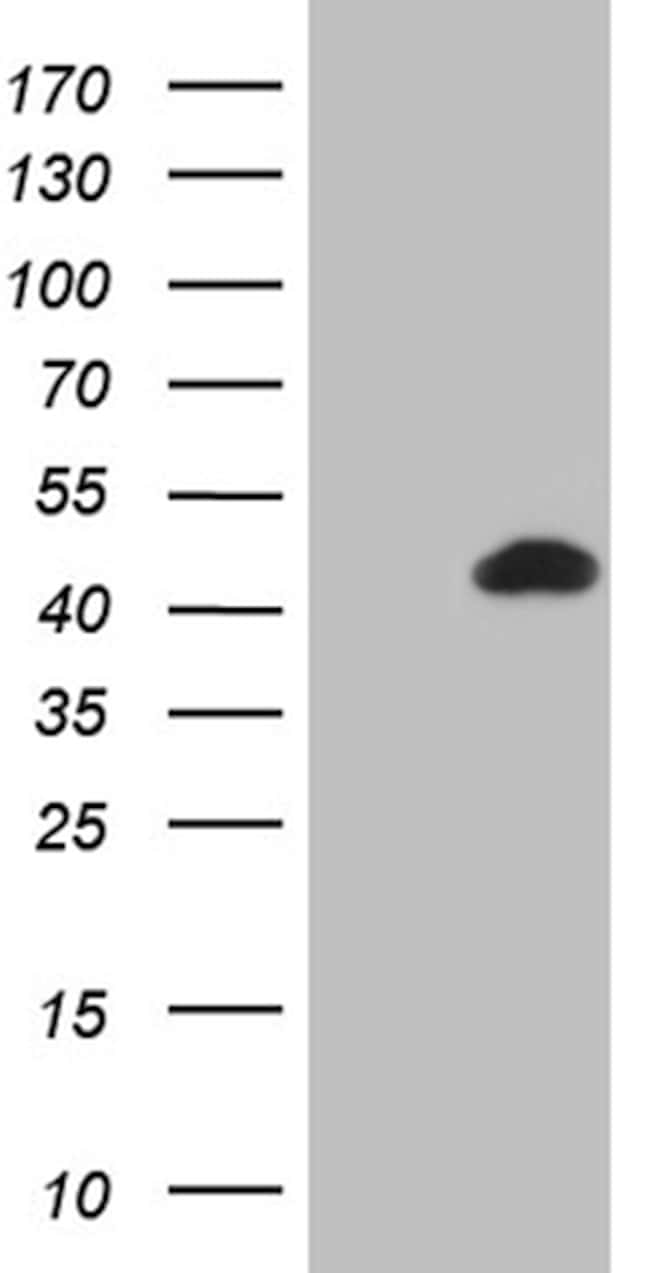 BCL7B Antibody in Western Blot (WB)