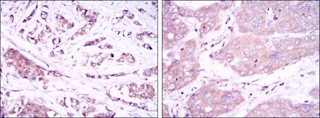 Beclin 1 Antibody in Immunohistochemistry (IHC)