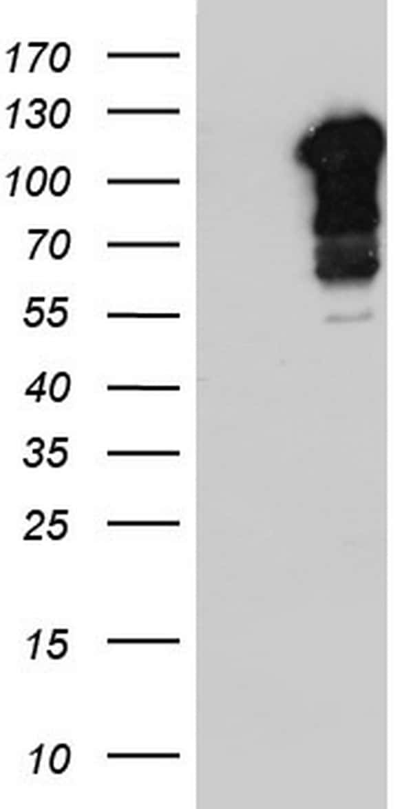 BFSP1 Antibody in Western Blot (WB)