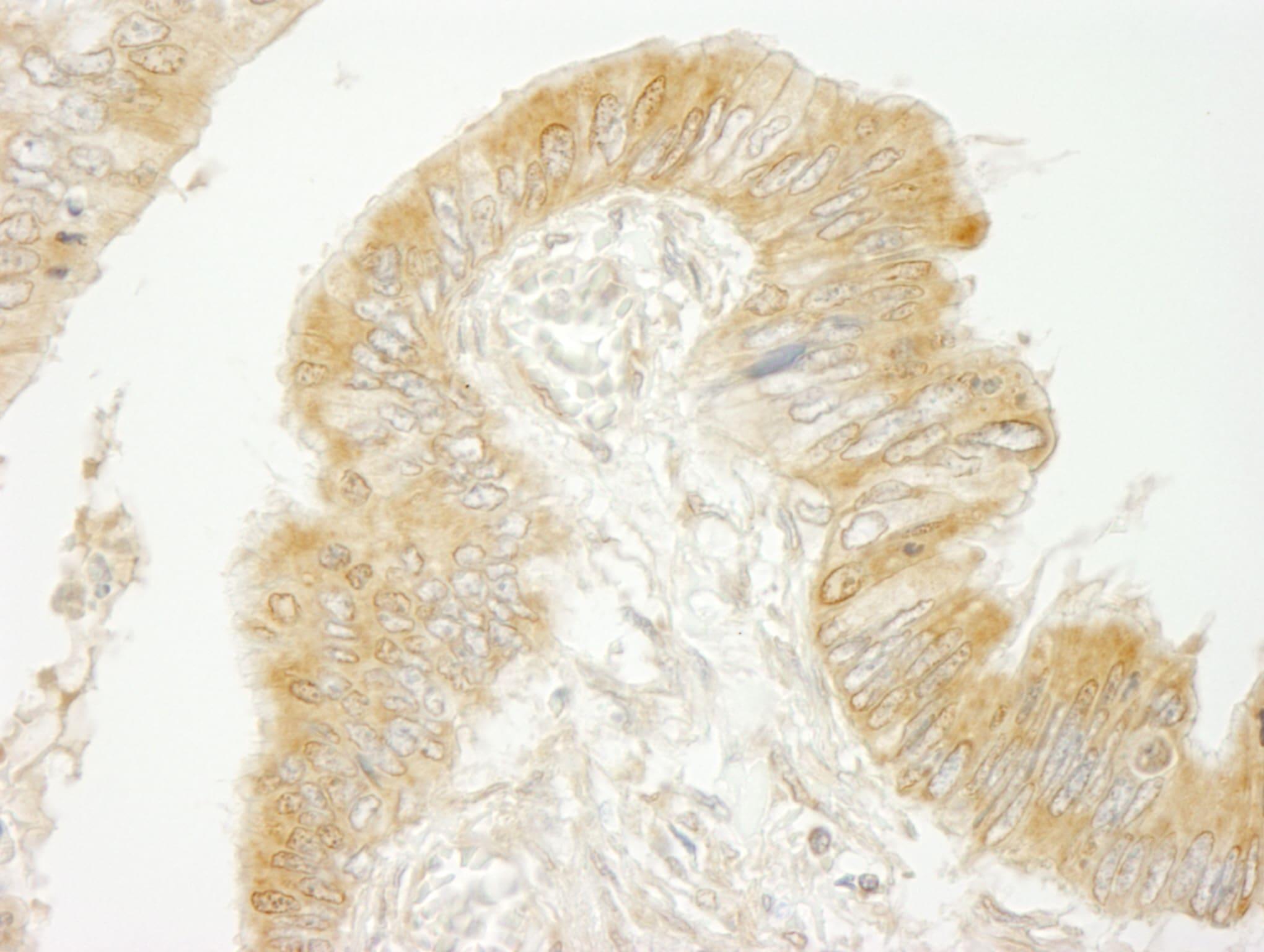 BIG2/ARFGEF2 Antibody in Immunohistochemistry (IHC)