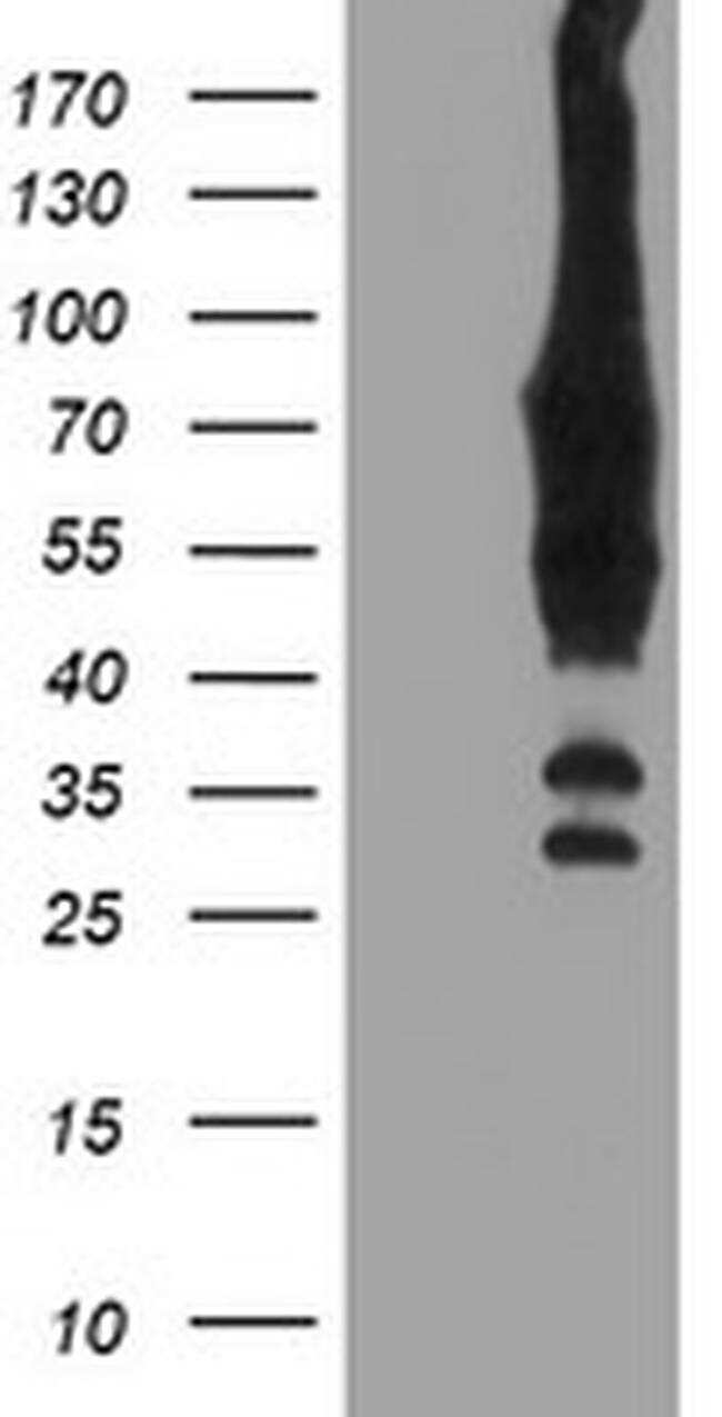 BIRC3 Antibody in Western Blot (WB)