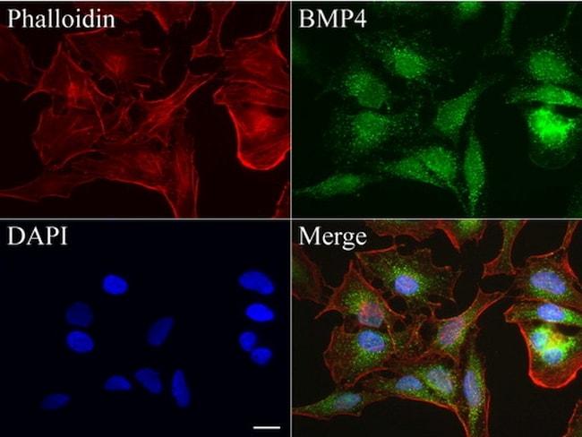 BMP4 Antibody in Immunofluorescence (IF)
