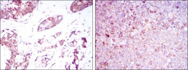 BMPR2 Antibody in Immunohistochemistry (IHC)