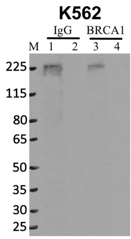 BRCA1 Antibody in Immunoprecipitation (IP)