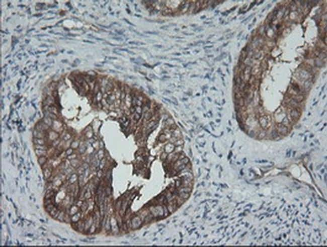 BRAF Antibody in Immunohistochemistry (Paraffin) (IHC (P))