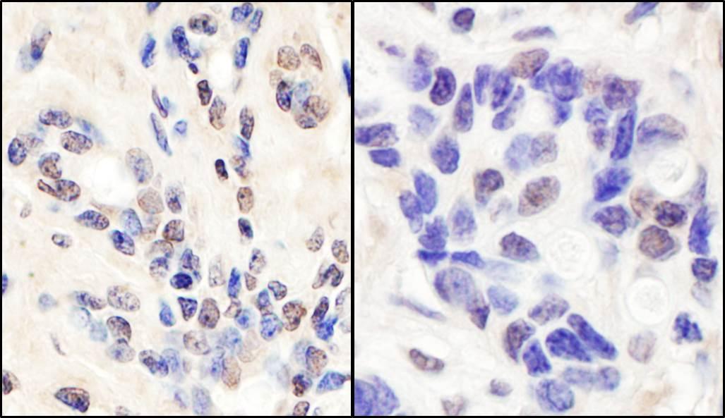 BRCA1 Antibody in Immunohistochemistry (IHC)