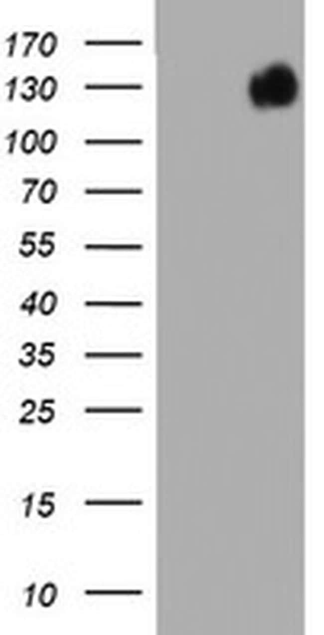BRCA1 Antibody in Western Blot (WB)