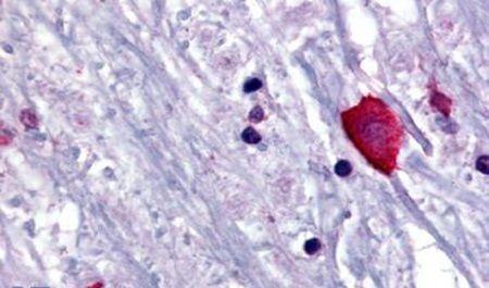 Bombesin Receptor 3 Antibody in Immunohistochemistry (Paraffin) (IHC (P))