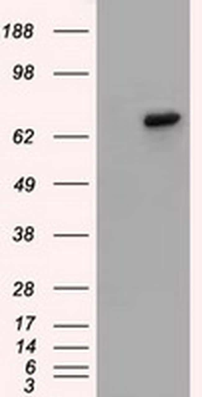 BTK Antibody in Western Blot (WB)