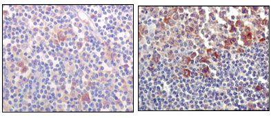Btk Antibody in Immunohistochemistry (IHC)