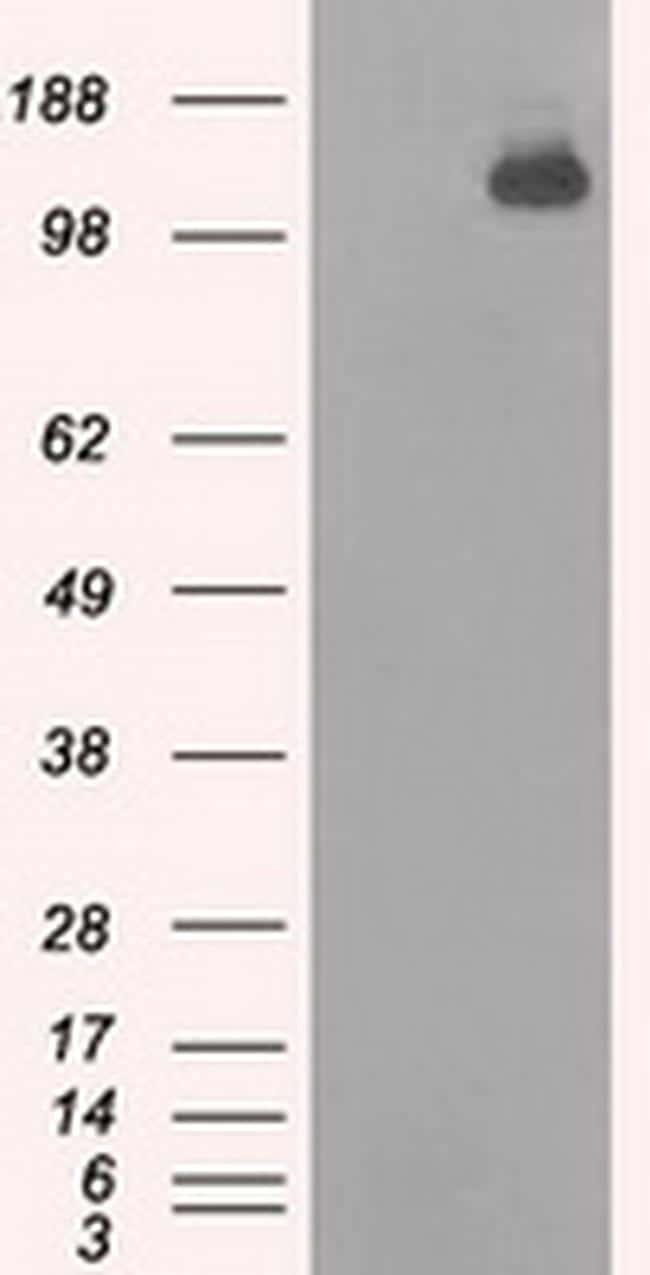BUB1B Antibody in Western Blot (WB)