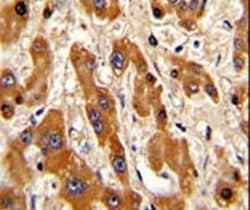 Bax Antibody in Immunohistochemistry (IHC)