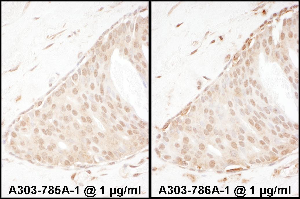 Beta-Arrestin 2 Antibody in Immunohistochemistry (IHC)