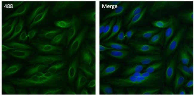 beta Tubulin Antibody in Immunofluorescence (IF)