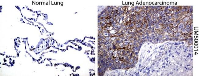 Beta-catenin Antibody in Immunohistochemistry (Paraffin) (IHC (P))