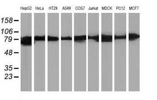 Beta-catenin Antibody in Western Blot (WB)