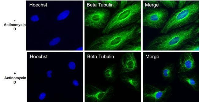 beta Tubulin Loading Control Antibody in Cell Treatment