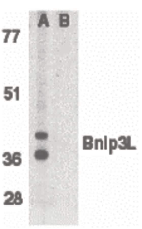 BNIP3L Antibody in Western Blot (WB)