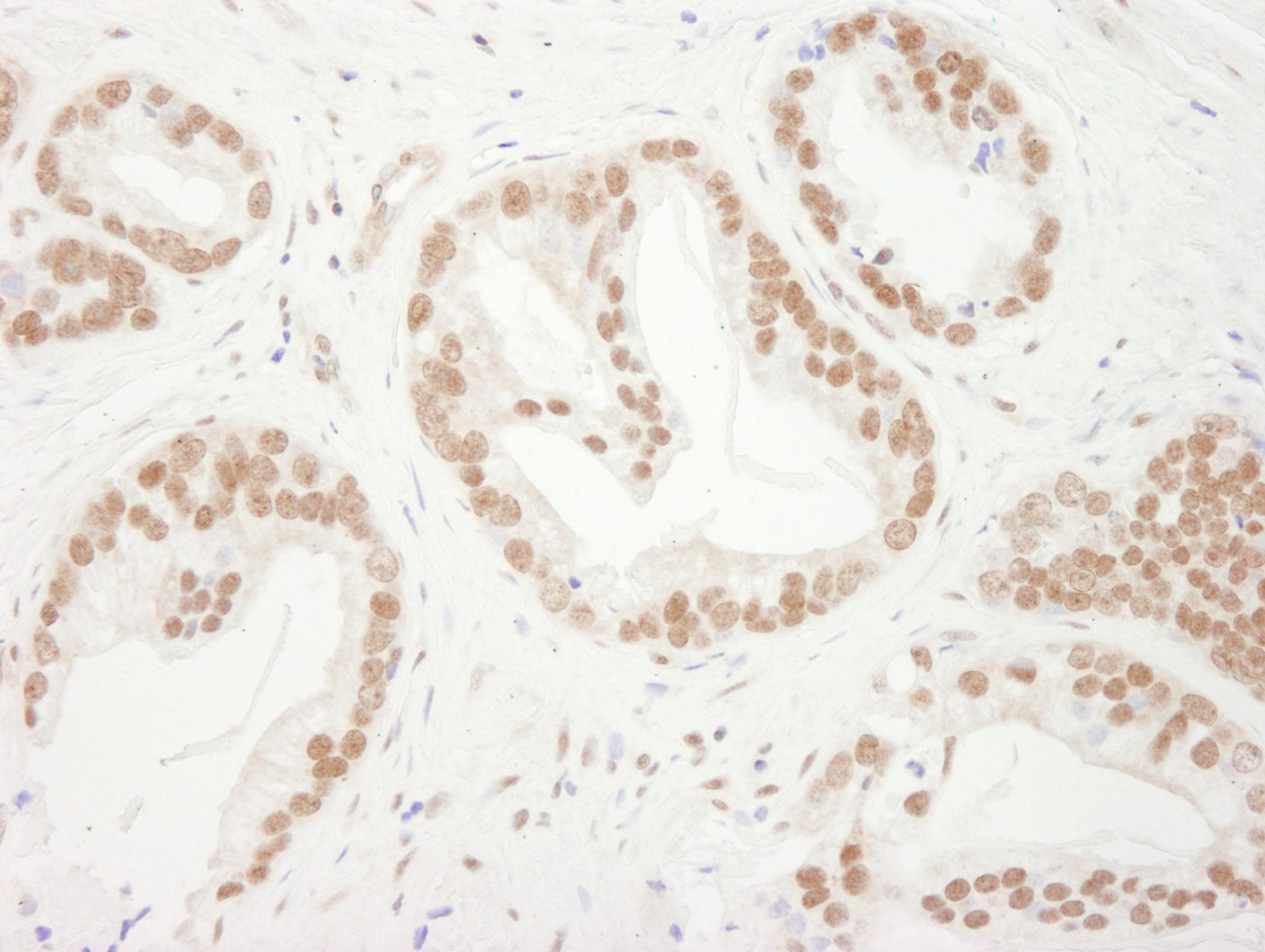 Bub3 Antibody in Immunohistochemistry (IHC)