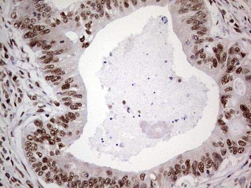 RTRAF Antibody in Immunohistochemistry (Paraffin) (IHC (P))