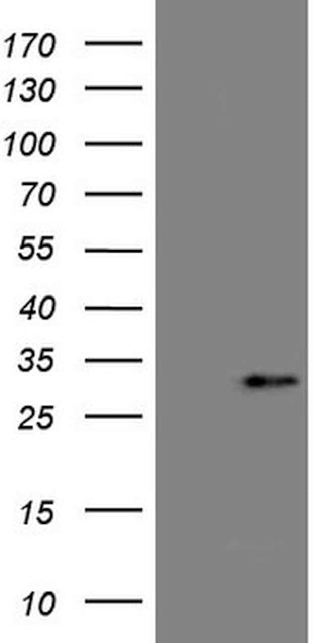 C19ORF80 Antibody in Western Blot (WB)
