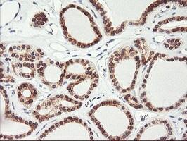 C20orf3 Antibody in Immunohistochemistry (Paraffin) (IHC (P))