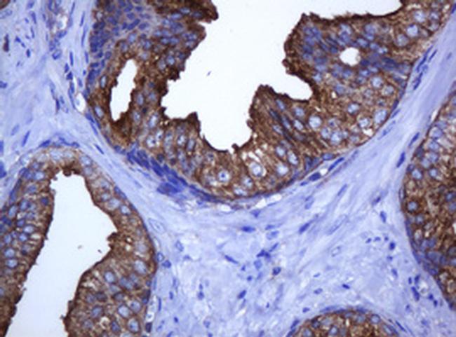C2orf62 Antibody in Immunohistochemistry (Paraffin) (IHC (P))