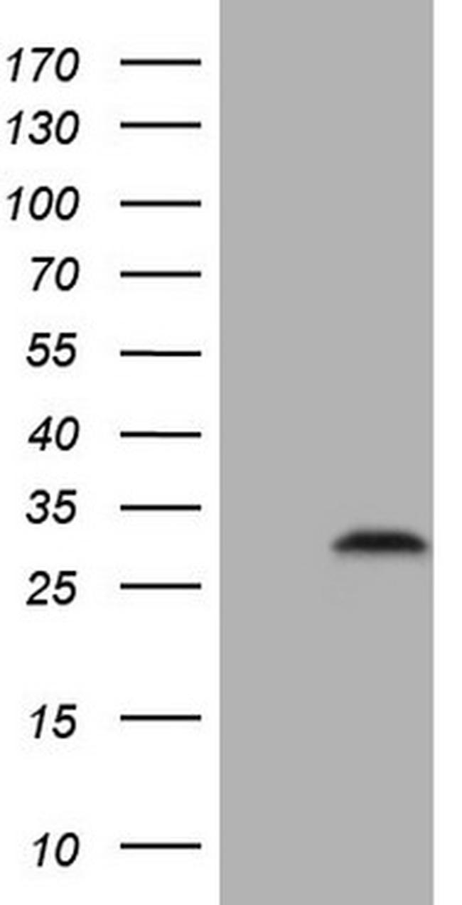 C3orf43 Antibody in Western Blot (WB)